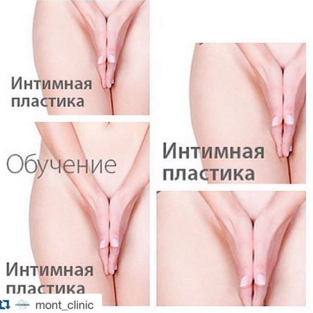 Обучение по интимной пластике
